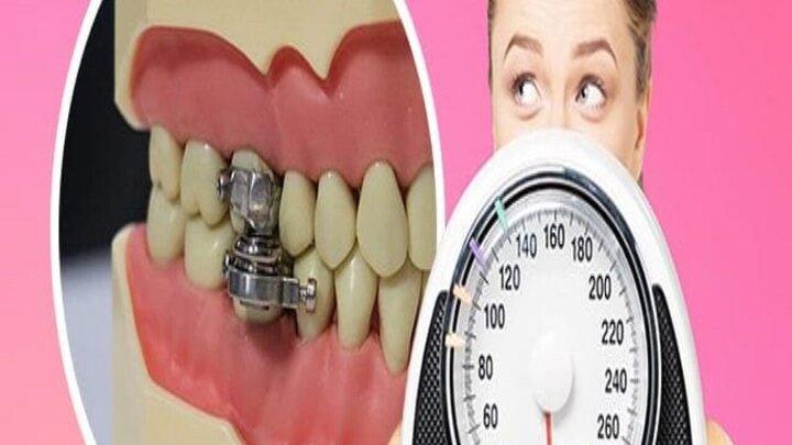 دهان بندی برای لاغری!