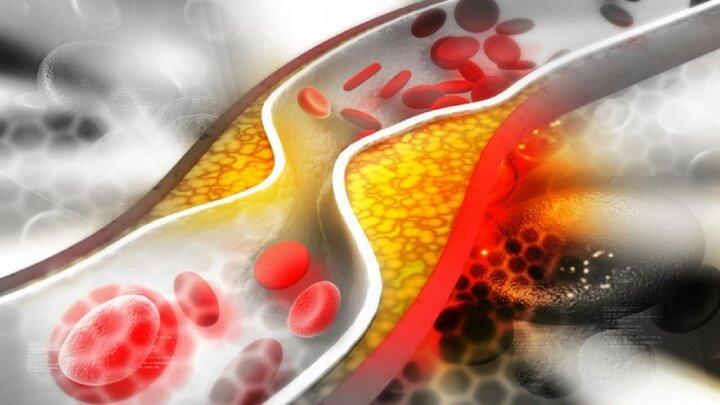 چربی خون چه نقشی در پیشرفت سرطان دارد؟